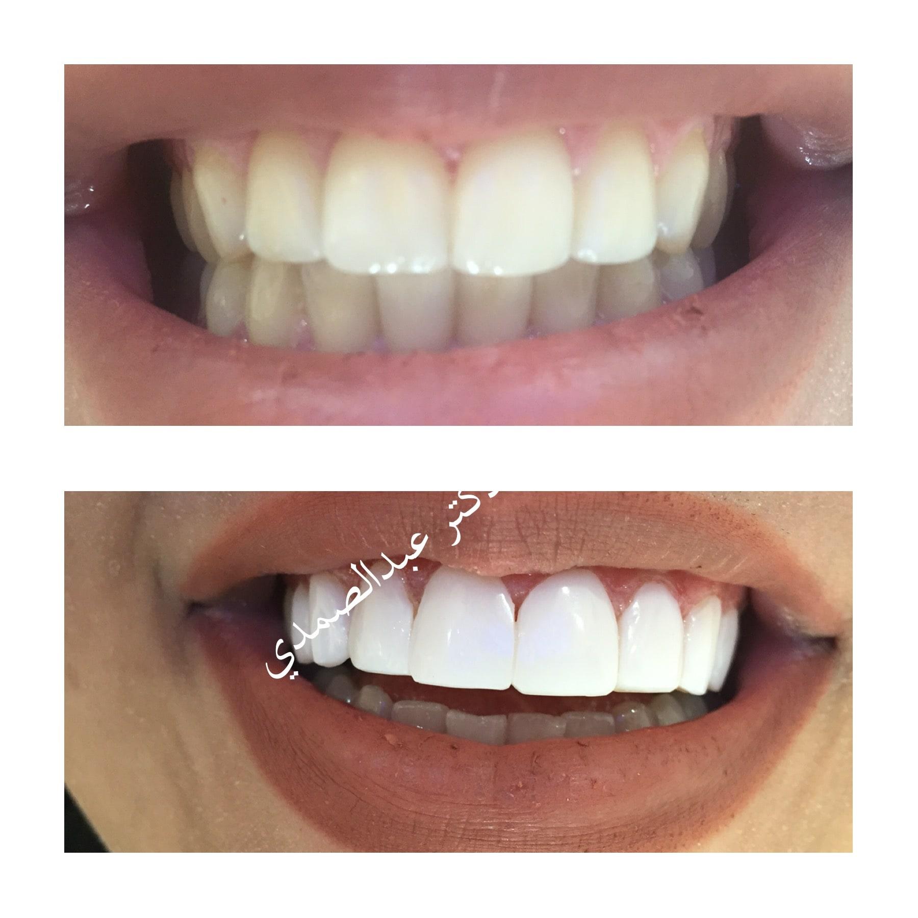 طراحی لبخند به روش کامپوزیت های آی پی اس