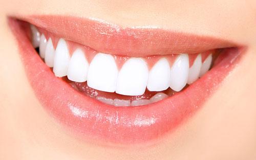 طرح لبخند چیست؟