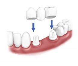 انواع مختلف روکش دندان کدام است؟