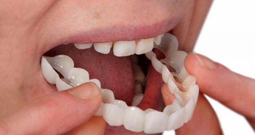 روکش دندان چیست و چه تفاوتی با لومینیرز دارد؟